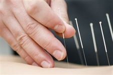 Acupuncture Fertility Therarpy